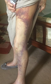 The victim shows the bruising on one of her legs.