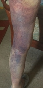 The victim shows the bruising on her other leg.